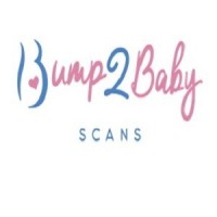 Baby Scan in Leicester   Bump2Baby Scans